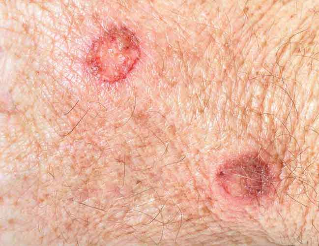 Early Squamous Cell Carcinoma Face